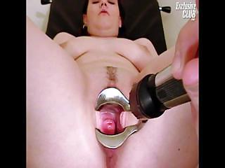Chubby Nia Gyno Speculum Exam Of Her Wide Open Pussy Sex Tubes
