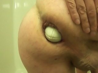 prolapse Large anal fist insertion extreme stretch weird